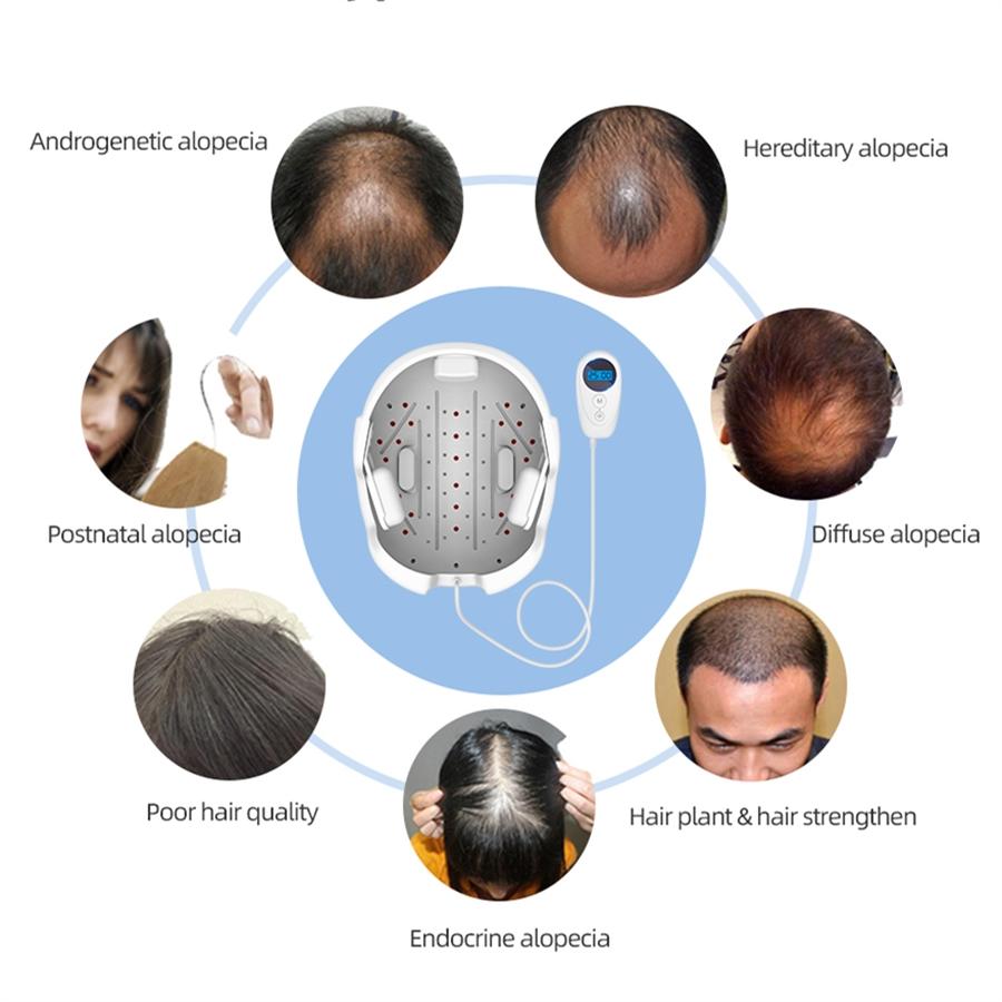 LESCOLTON LS-D601 Anti Hair Loss Laser Hair Regrowth Helmet for Hair Loss Medical Diodes Hair Regrow Treatment