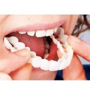Simulation Whitening Lower Row Braces Teeth Whitening Kit Upper Row Dentures Braces