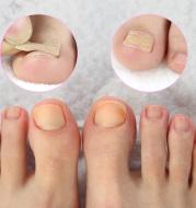 Toe Nail Sticker