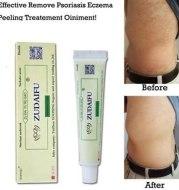 Natural Dermatitis Eczematoid Eczema Ointment Treatment Psoriasis Cream Skin Care